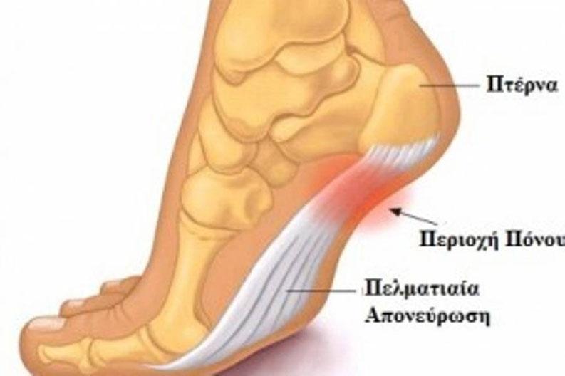 Ποδολογικό Κέντρο Καλαμάτας - Καλλιρόη Πετροπούλου - Πελματιαία Απονευρωσίτιδα