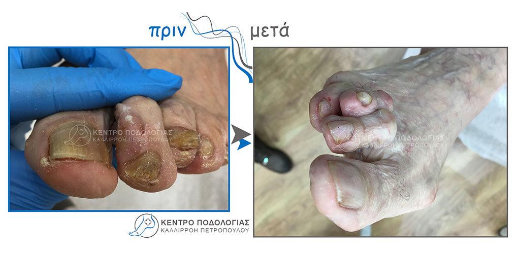 7. Πεπαχυμένα νύχια με μύκητες και καθαρισμός αυτών.