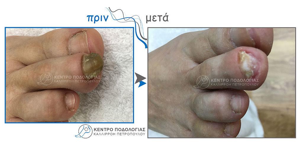19. Πεπαχυμένα νύχια με μύκητες και καθαρισμός αυτών