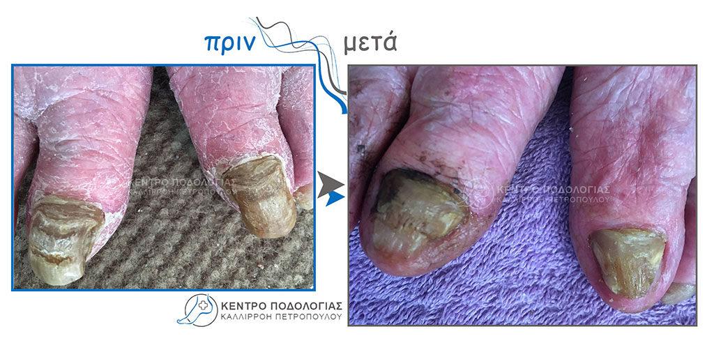 24. Πεπαχυμένα νύχια με μύκητες και καθαρισμός αυτών