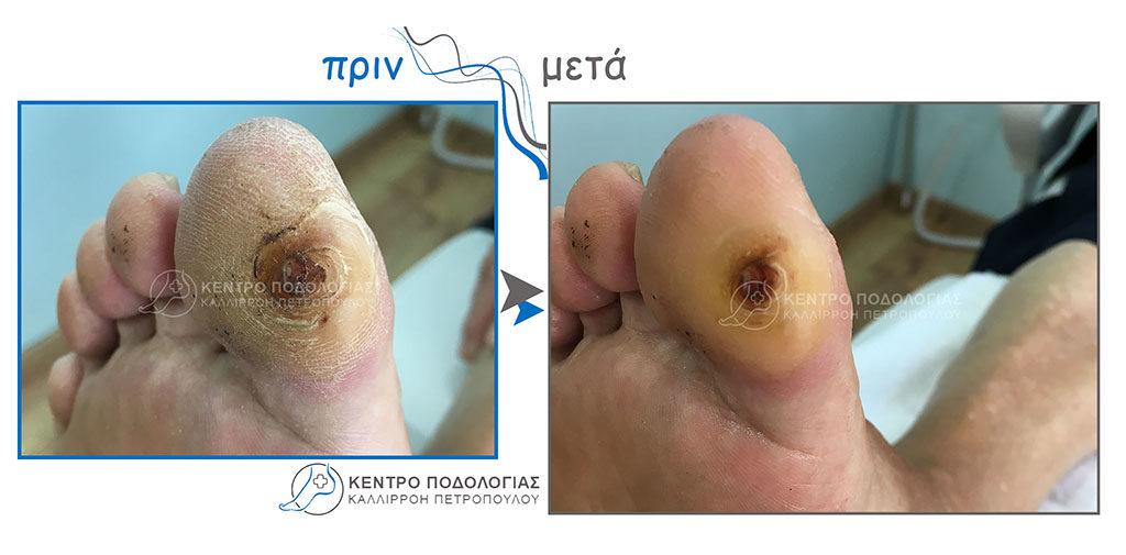25. Αφαίρεση Πελματιαίου Τύλου (κάλλος) σε διαβητικού πόδι και αναίμακτη αφαίρεση αυτού
