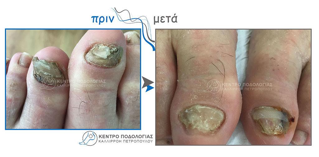 29. Πεπαχυμένα νύχια με μύκητες – Ονυχοκρύπτωση και καθαρισμός αυτών με τοποθέτηση ελάσματος – νάρθηκα (B-S)