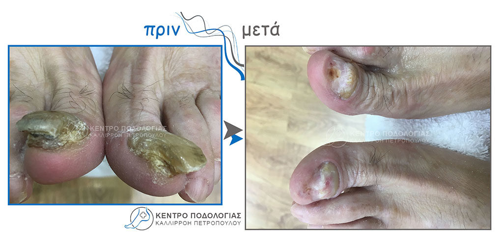 31. Πεπαχυμένα νύχια με μύκητες και καθαρισμός αυτών
