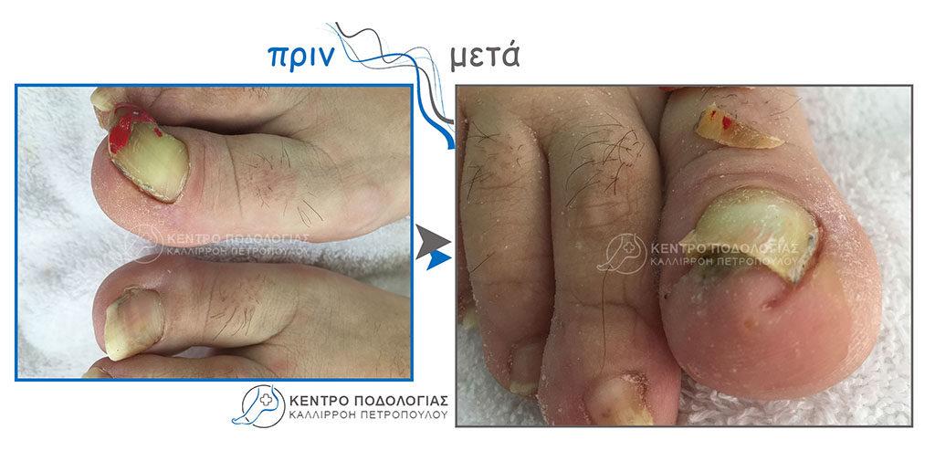 33. Πεπαχυμένα νύχια με μύκητες – ψωρίαση καθώς και καθαρισμός δέρματος από έντονη υπερκεράτωση