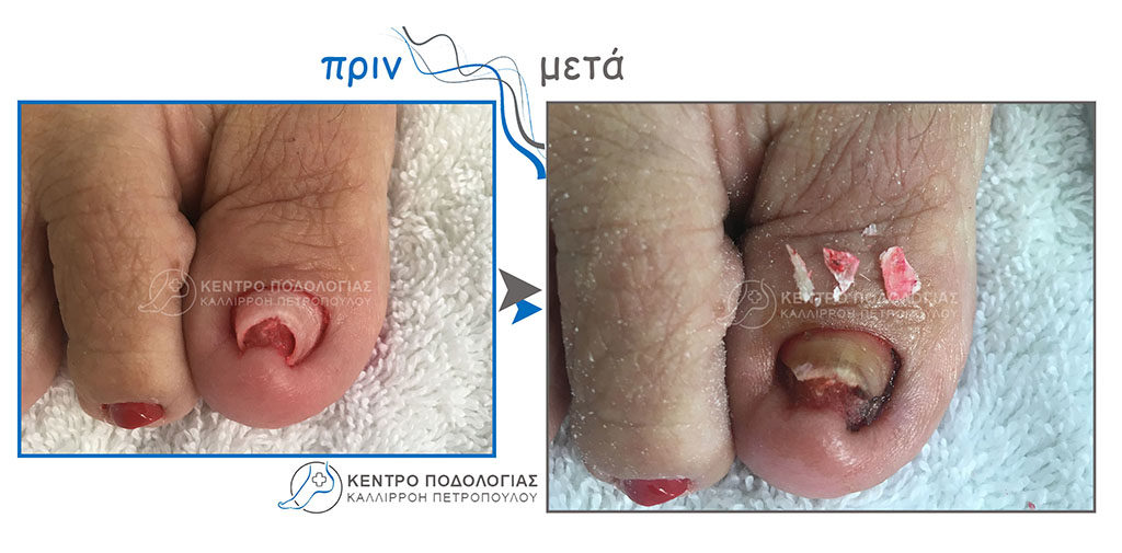 42. Ονυχοκρύπτωση με αφαίρεση τμήματος νυχιού από την ονυχαία αύλακα