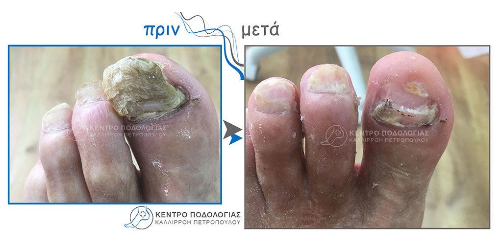 45. Πεπαχυμένα νύχια με μύκητες και καθαρισμός αυτών