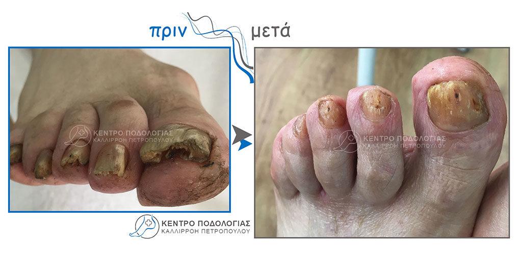 50. Πεπαχυμένα νύχια με μύκητες και αναίμακτος καθαρισμός αυτών σε άτομο με σακχαρώδη διαβήτη