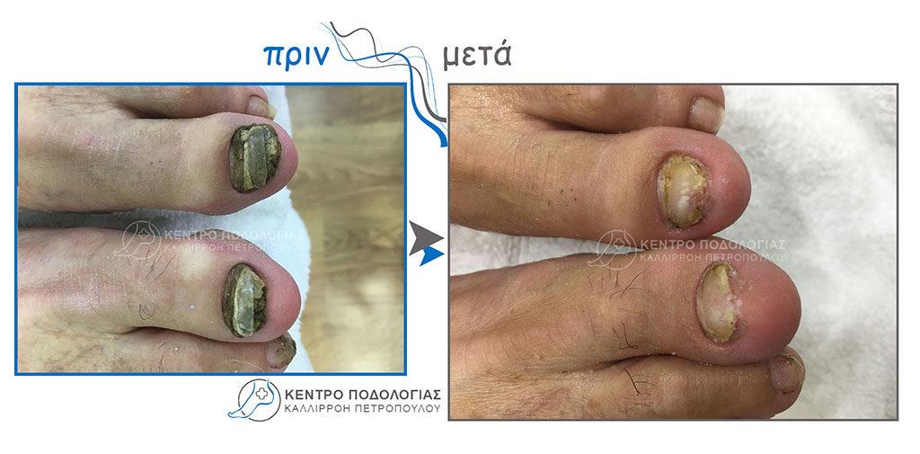 56. Πεπαχυμένα νύχια με μύκητες και καθαρισμός αυτών