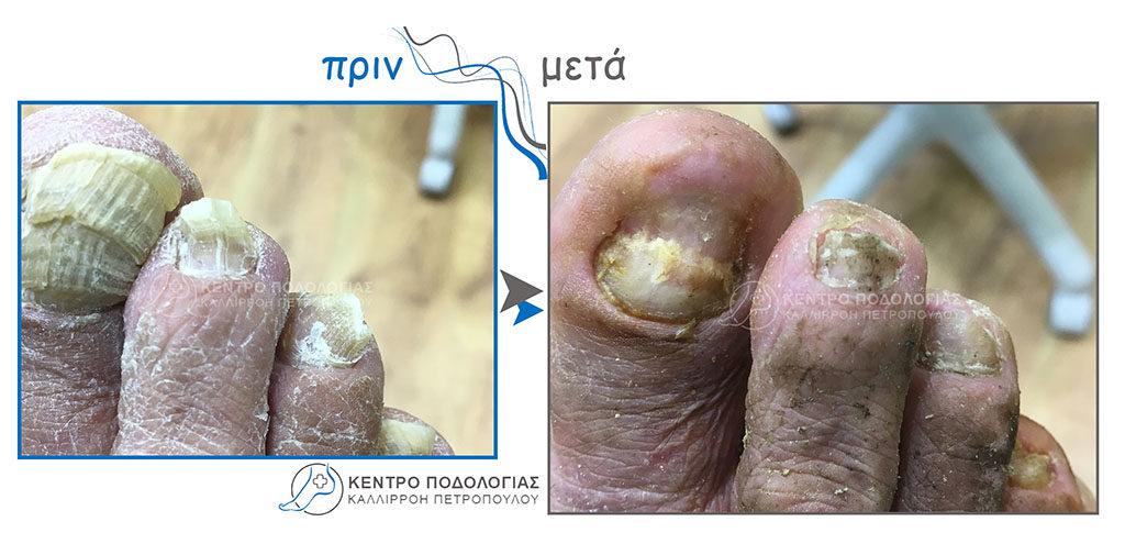 63. Πεπαχυμένα νύχια με μύκητες και καθαρισμός αυτών