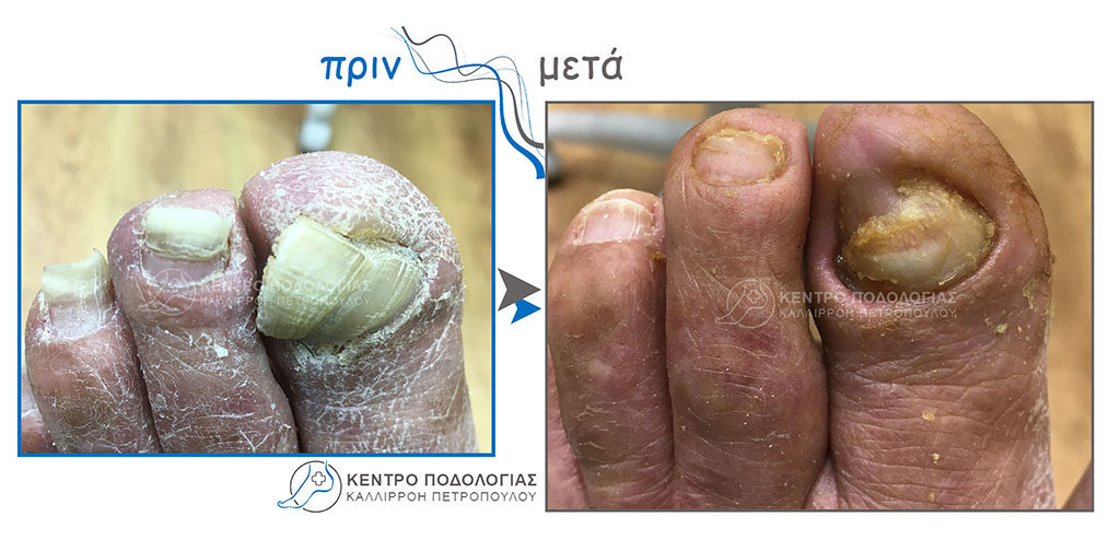 64. Πεπαχυμένα νύχια με μύκητες και καθαρισμός αυτών και καθαρισμός υπερκερατωμένου δέρματος από ψωριασιακή αρθρίτιδα