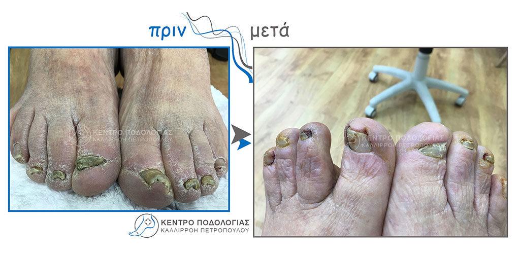 68. Πεπαχυμένα νύχια με μύκητες και ψωρίαση και καθαρισμός αυτών και καθαρισμός υπερκερατωμένου δέρματος