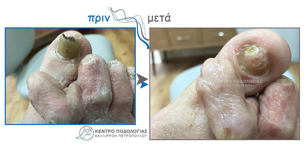 70. Πεπαχυμένα νύχια με μύκητες και καθαρισμός αυτών και κάλλος στη δεύτερη φάλαγγα