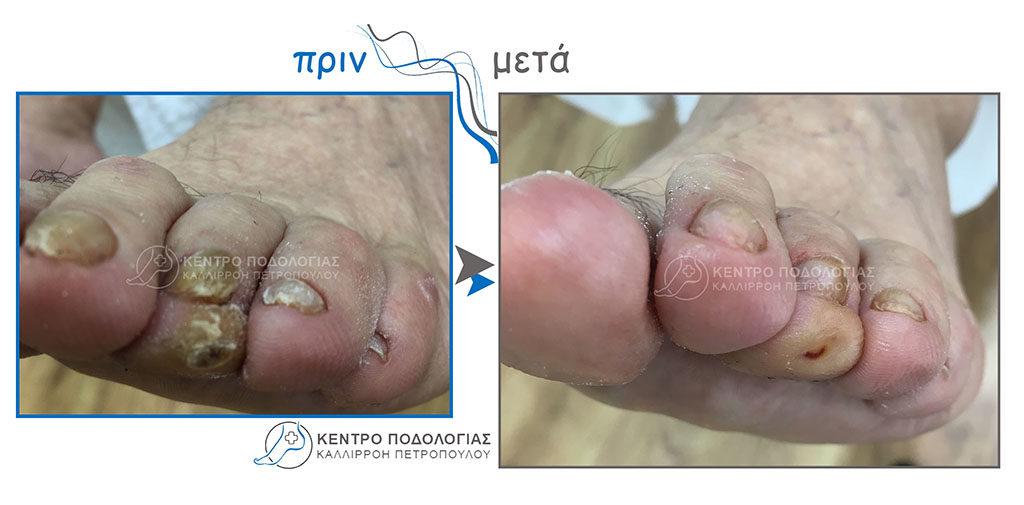 71. Πεπαχυμένα νύχια με μύκητες και καθαρισμός αυτών και καθαρισμός τύλου στην Τρίτη φάλαγγα